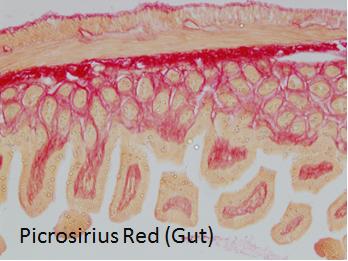 Picrosirius red